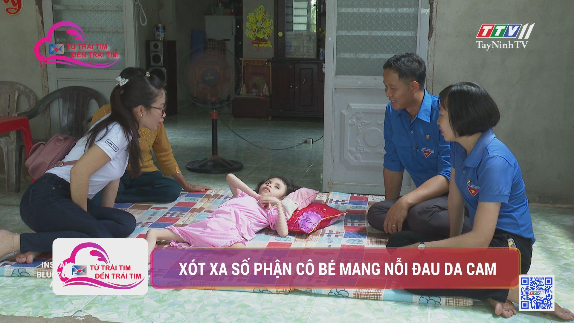 Xót xa số phận cô bé mang nỗi đau da cam | TỪ TRÁI TIM ĐẾN TRÁI TIM | TayNinhTV